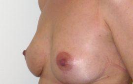 brustverkleinerung-17e-nachher-plastische-chirurgie
