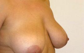Brustverkleinerung 1e vorher Bild Dr Sylvester M Maas