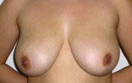 brustverkleinerung-2a-vorher-plastische-chirurgie