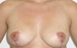 brustverkleinerung-2b-nachher-plastische-chirurgie
