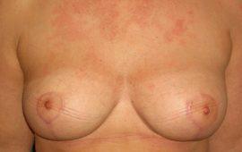 brustverkleinerung-3b-nachher-plastische-chirurgie