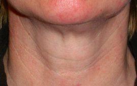 Fettabsaugung Hals 6b nachher Bild Dr Sylvester M Maas