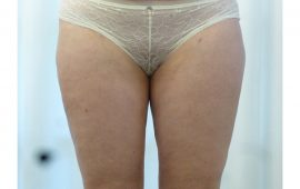Fettabsaugung 4b nachher Bild Dr Sylvester M Maas