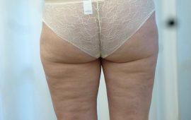 Fettabsaugung 4d nachher Bild Dr Sylvester M Maas