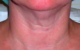 Fettabsaugung Hals 6a vorher Bild Dr Sylvester M Maas