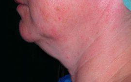 Fettabsaugung Hals 6c vorher Bild Dr Sylvester M Maas