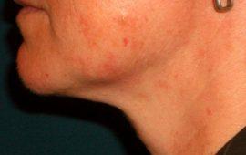 Fettabsaugung Hals 6d nachher Bild Dr Sylvester M Maas