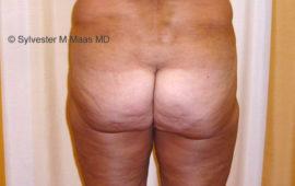 Fettabsaugung 9a Vorher-Bild Dr Sylvester M Maas