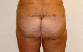 Fettabsaugung 9c Nachher Bild Dr Sylvester M Maas