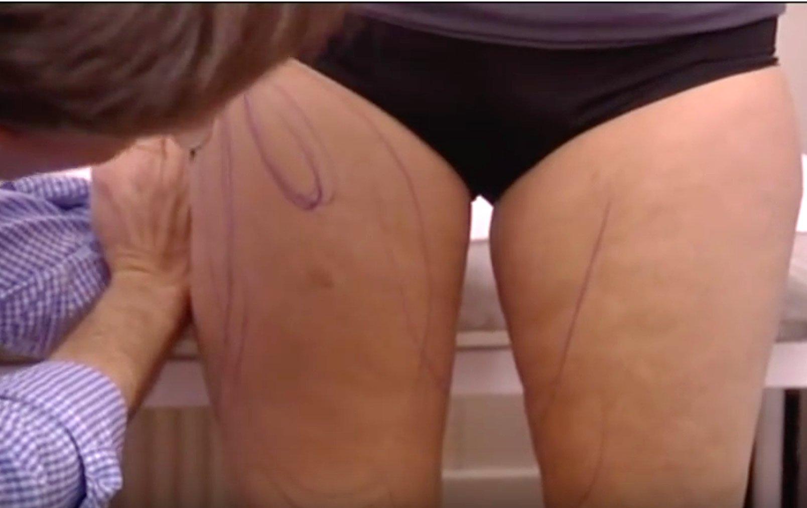 Video Fettabsaugung Dr Sylvester M Maas MAAS AeSTHETICS.ch