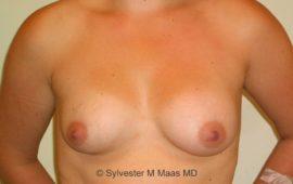 Brustimplantat Wechsel 3a vorher Bild Dr Maas