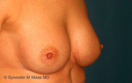 Brustimplantat Wechsel 4f nachher Bild Dr Maas
