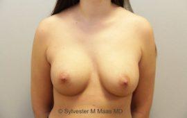 Brustimplantat Wechsel 5a vorher Bild Dr Maas