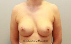 Brustimplantat Wechsel 5j nachher Bild Dr Maas
