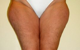 Liposuction 2a preop foto Dr Sylvester M Maas