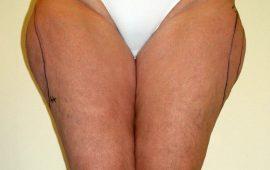 Liposuction 2b preop foto Dr Sylvester M Maas
