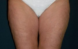 Liposuction 2c postop foto Dr Sylvester M Maas