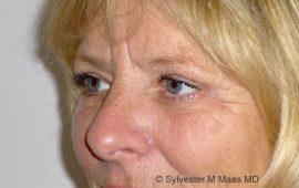 Oberlid und Unterlid Korrektur 1f Nachher Bild Dr Maas