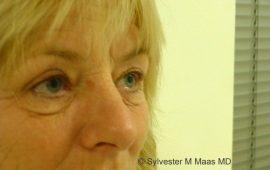 Oberlid und Unterlid Korrektur 1c Vorher Bild Dr Maas