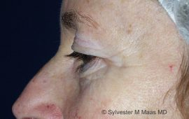 oberlid-und-unterlid-korrektur-2b-vorher-plastische-chirurgie