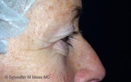 oberlid-und-unterlid-korrektur-2c-vorher-plastische-chirurgie