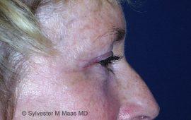oberlid-und-unterlid-korrektur-2e-nachher-plastische-chirurgie