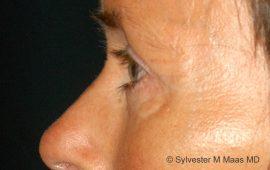 Oberlid und Unterlid- Korrektur-2l-Nachher Bild Dr Maas