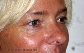 oberlid-und-unterlid-korrektur-5b-vorher-plastische-chirurgie