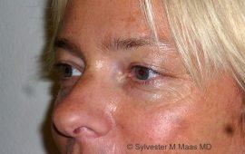 oberlid-und-unterlid-korrektur-5c-vorher-plastische-chirurgie