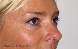 oberlid-und-unterlid-korrektur-5e-nachher-plastische-chirurgie