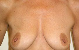 Brustvergrösserung 11a vorher Bild Dr Sylvester M Maas