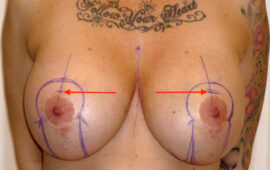 Brustimplantat Entfernung 1d+ Vorher Bild Dr Sylvester M Maas Maas