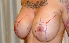 Brustimplantat Entfernung 1e+ Vorher Bild Dr Sylvester M Maas