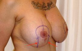 Brustimplantat Entfernung 1f Vorher Bild Dr Sylvester M Maas