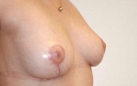 Brustimplantat Entfernung Bruststraffung 2f Nachher Dr Maas Zug