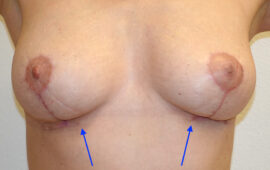 Brustimplantat Entfernung Bruststraffung 2gg Nachher Dr Maas Zug