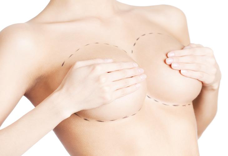 Informationen Brustimplantat Entfernung