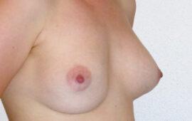 Brustimplantat Entfernung totale Kapsulektomie 1b Vorher Maas Aesthetics.ch