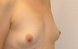 Brustimplantat Entfernung totale Kapsulektomie 1f Nachher Maas Aesthetics.ch