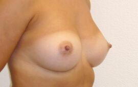 Brustvergroesserung 51f Nachher Bild Dr Sylvester M Maas