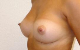 Brustvergroesserung 51g Nachher Bild Dr Sylvester M Maas