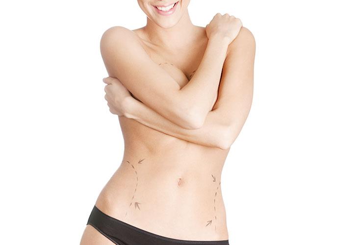 Brustvergroesserung mit Eigenfett