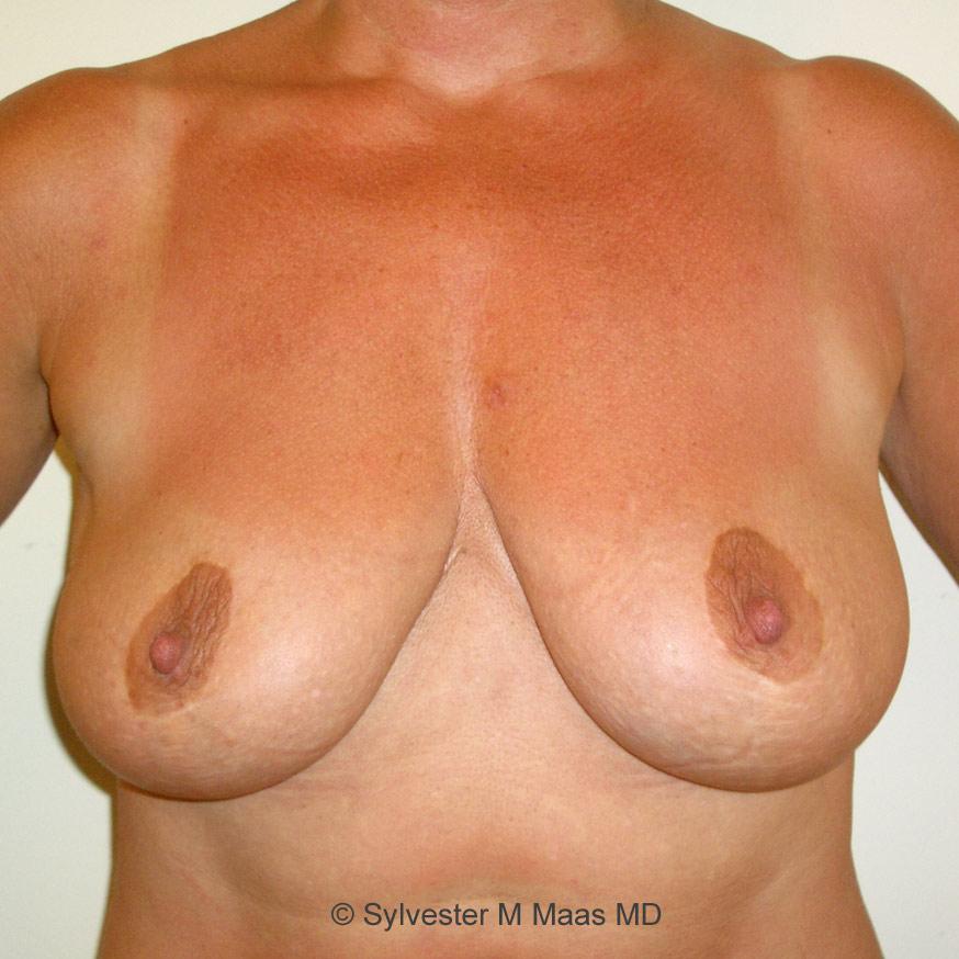 Silikon brüste nackt