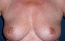 Brustverkleinerung Nachkorrektur 1e Nachher Dr Sylvester Maas Zug