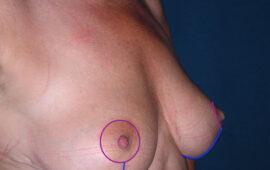 Brustverkleinerung Nachkorrektur 1g Nachher Dr Sylvester Maas Zug