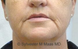 Falten Mund Behandlung 3a Vorher Bild Dr Maas Zug Schweiz