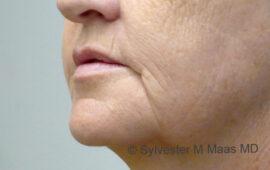 Falten Mund Behandlung 3b Vorher Bild Dr Maas Zug Schweiz