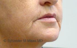 Falten Mund Behandlung 3c Vorher Bild Dr Maas Zug Schweiz