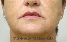 Falten Mund Behandlung 3d Nachher Bild Dr Maas Zug Schweiz