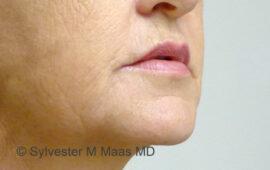 Falten Mund Behandlung 3e Nachher Bild Dr Maas Zug Schweiz